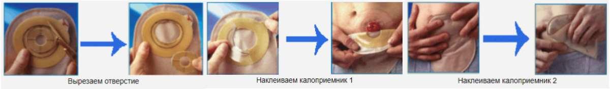 Средство по уходу за кожей вокруг стомы
