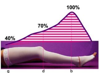 Острый тромбоз глубоких вен нижних конечностей лечение